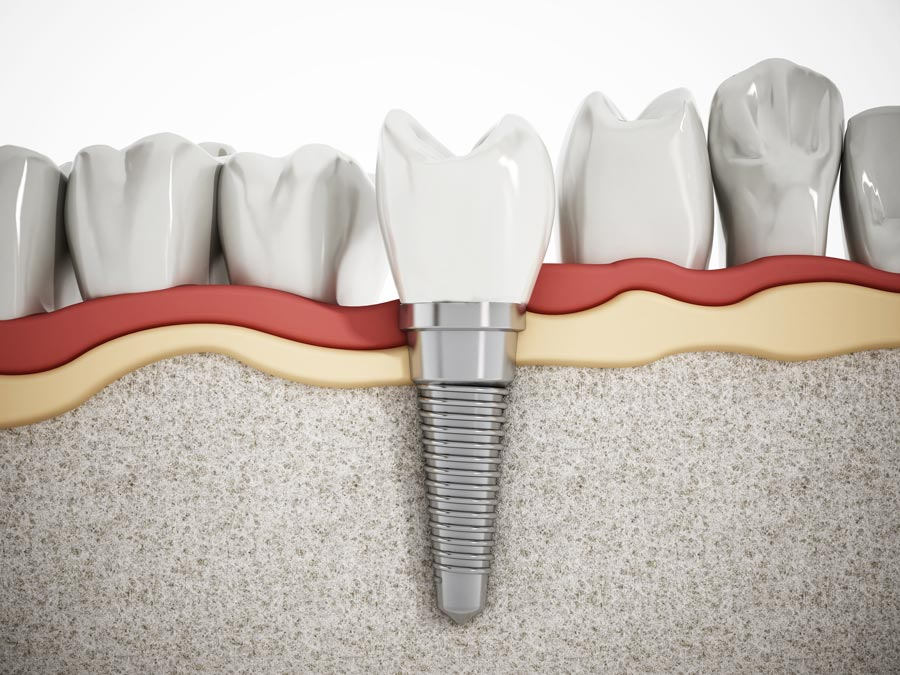 implantes-dentales-riesgos