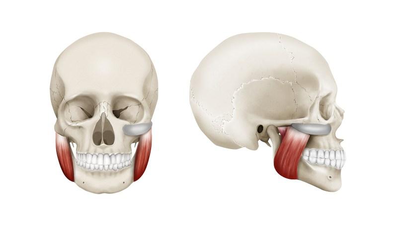 Cirugía de prótesis malares