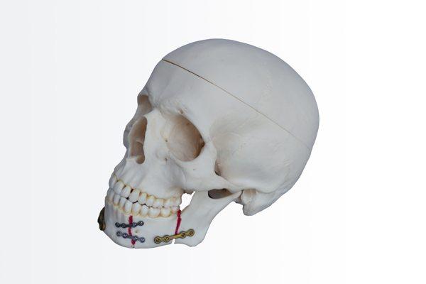 Las fracturas mandibulares en traumatología facial