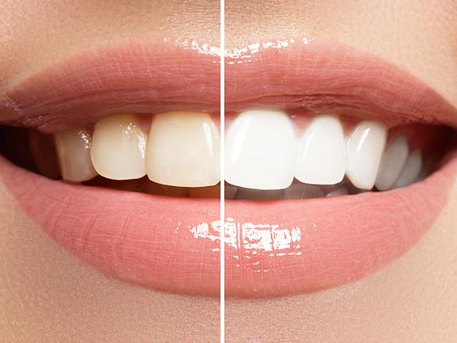 por-que-se-amarillos-dientes